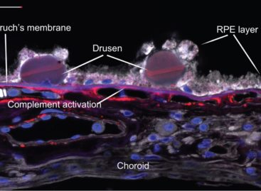 Stem Cells Strategy To Macular Degeneration Patients