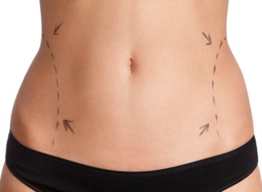 The best fort lauderdale liposuction
