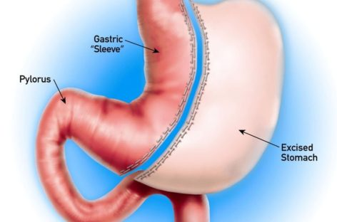 Why consider Gastric Sleeve Houston