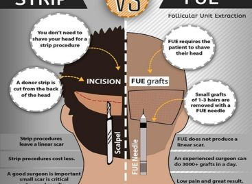 India- Eminent Place for Hair Transplant Treatment