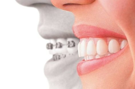 Opt For The Perfect Laser Teeth Whitening Nottingham