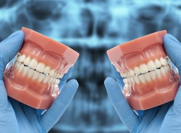 Use Of Latest Technology Resulted In More Advanced All On 4 Dental Implants