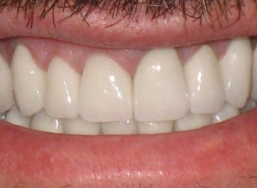 The Importance Of A Full Mouth Restoration