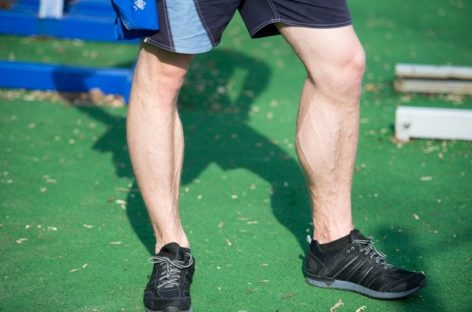 Varicose Vein Treatment: Do Hormones Play a Role In Men?