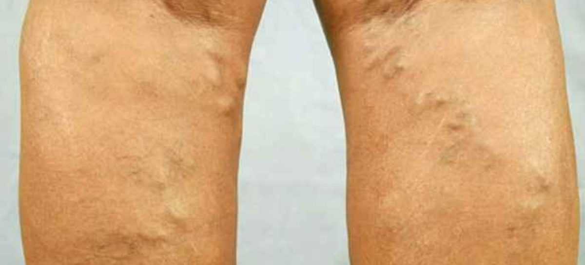 Which mode of Varicose Veins treatment is best for you?