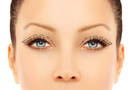 Make Yourself Look Younger With Eyelid Surgery