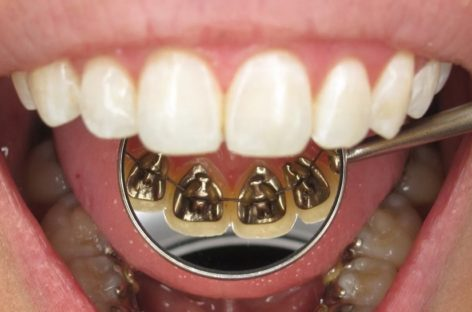 Lingual Braces For Healthy And Beautiful Smile