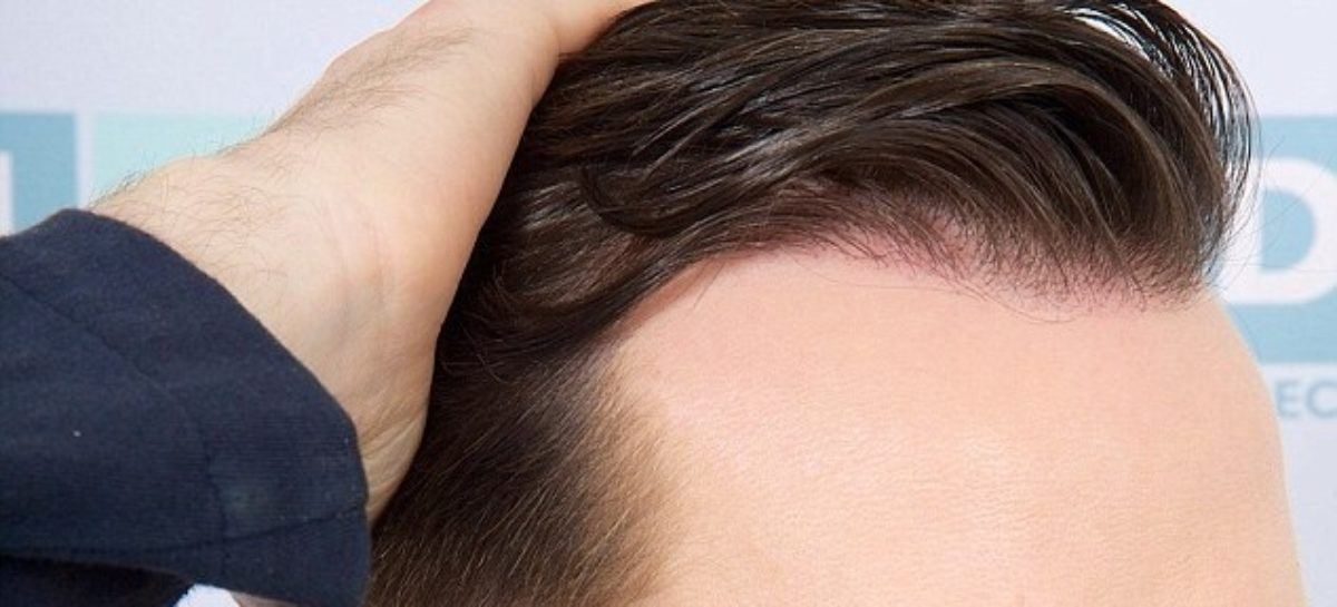 Want a Hair Transplant? Here's What to Expect