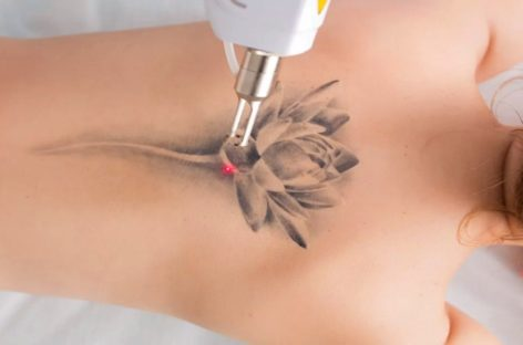 7 Interesting & Odd Facts about Laser Tattoo Removal