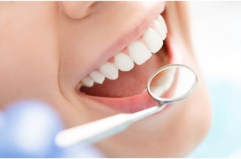 Teeth Whitening Procedures To Help In Keeping Sparkling Teeth