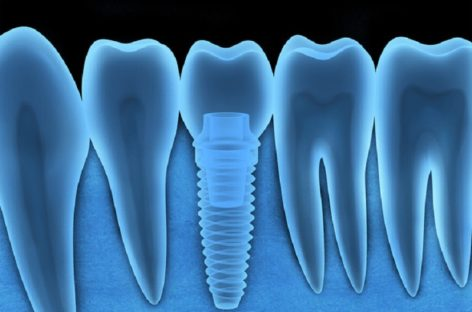 DENTAL IMPLANTS TECHNOLOGY ADVANCEMENTS BETTER FOR PATIENTS