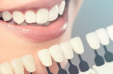 Some Top Health Advantages of Cosmetic Dentistry