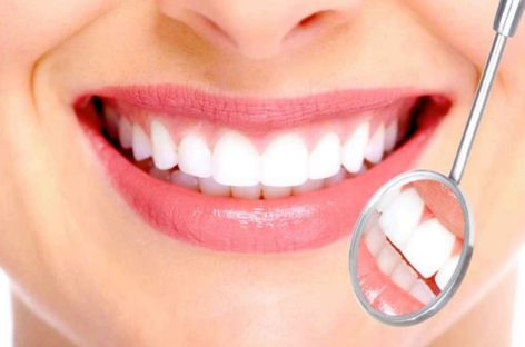 What should you know about the best teeth whitening kits
