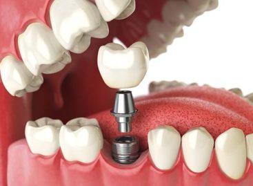 All-on-6 dental implant versus All-on-4 dental implants