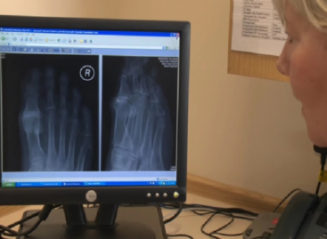 Preventing the Side Effects of Clinical Radiology