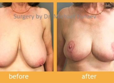 Correct Your Breasts With Simple Procedures