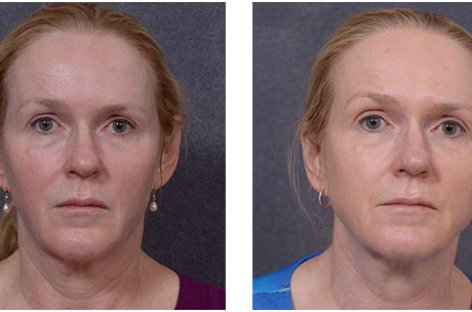 Rewind Aging On Your Skin With These Modern Procedures