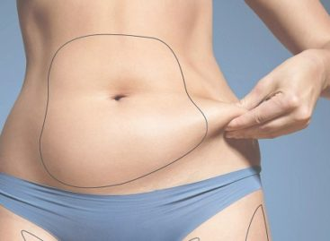 Everything you didn't know about Coolsculpting