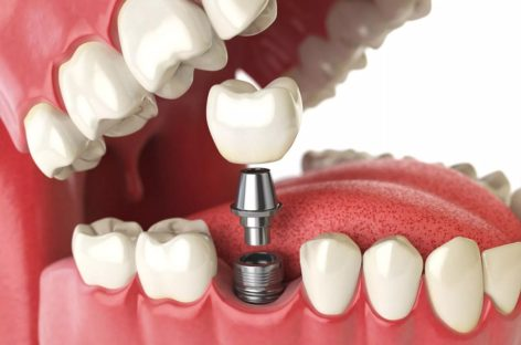 When are Dental Implants Needed?
