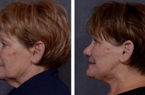Fight Aging With These Cosmetic Procedures
